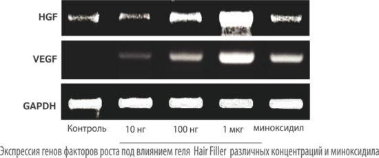 Оценка экспрессии генов факторов роста (HGF&VEGF) клеток волосяного фолликула