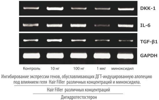 Оценка ингибирования экспрессии генов, обусловливающих ДГТ-индуцировонную алопецию